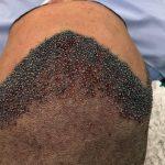 cirurgia capilar ribeirão preto avançada