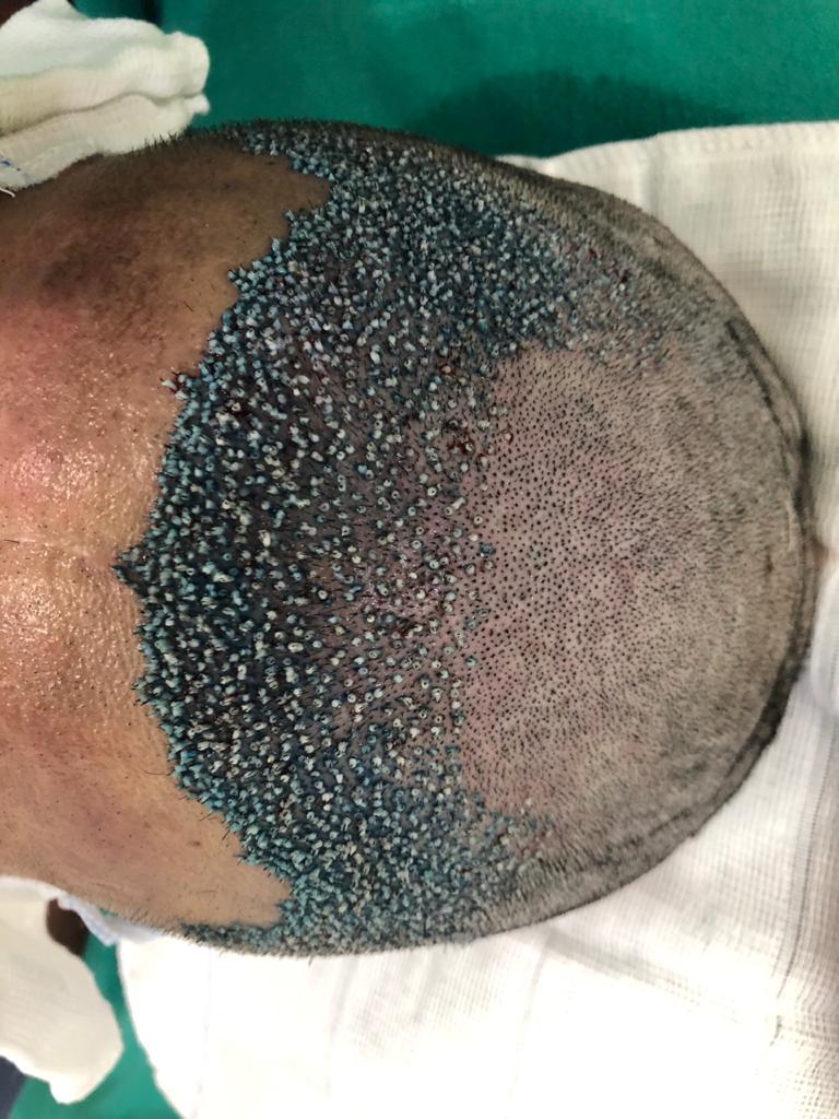 cirurgia capilar ribeirão preto preço