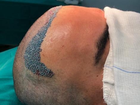 especialista em transplante capilar ribeirão preto