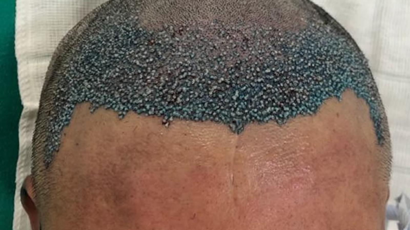 transplante capilar cirurgia em ribeirão preto