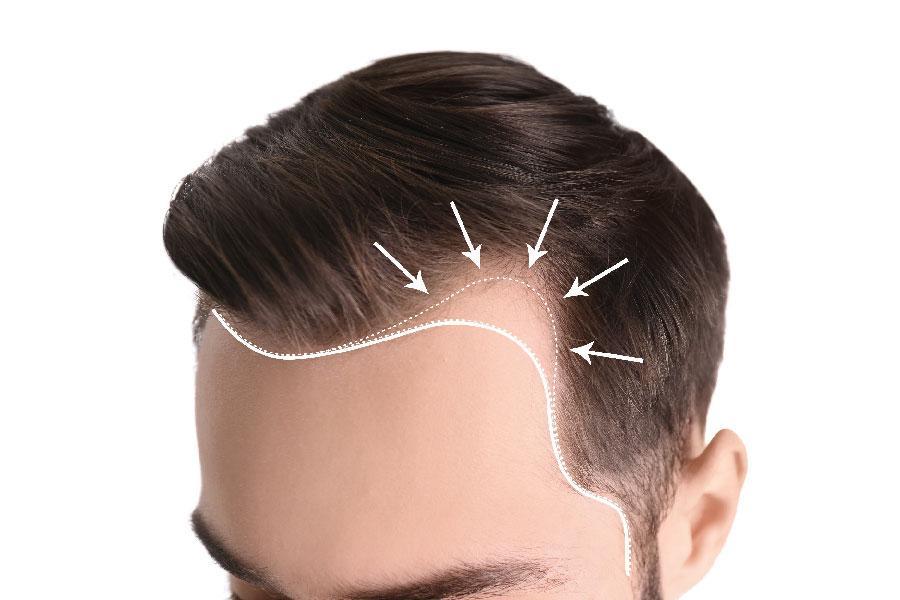 hairline transplante capilar