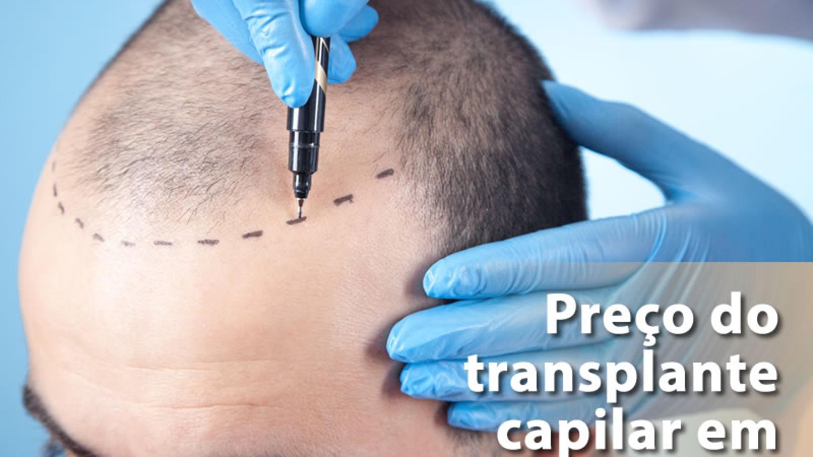 preço do transplante capilar ribeirão preto valores
