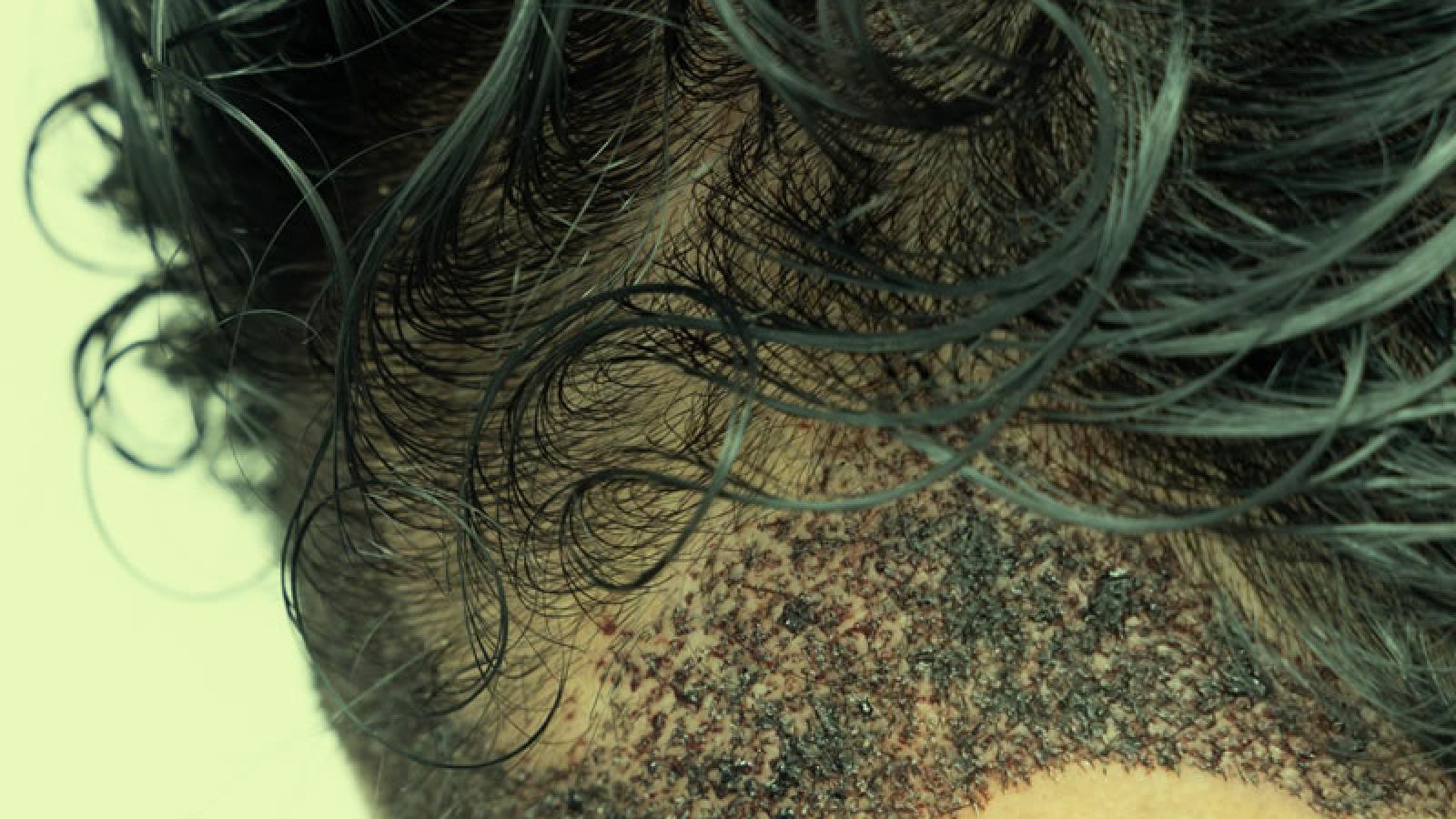 transplante capilar em ribeirão preto o que é quanto custa preço