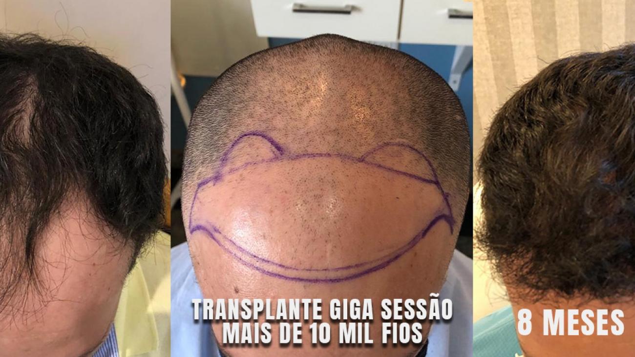 transplante capilar fue antes e depois ribeirao preto