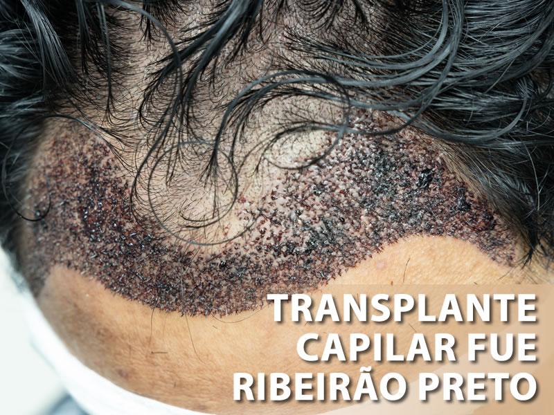transplante de calvicie ribeirao preto