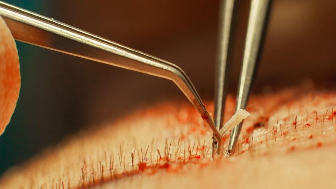 Técnicas de transplante capilar em Ribeirão Preto FUE e FUT preço valor quanto custa o implante de cabelos